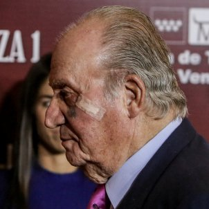 joan carles cara marcada EP