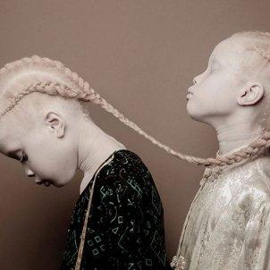 bessones albines instagram