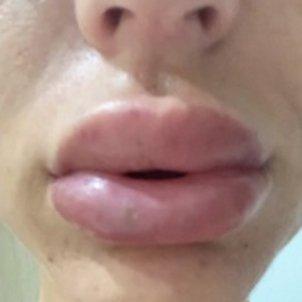 aurah ruiz llavis boca estetica mtmad