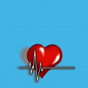 Arritmia corazón