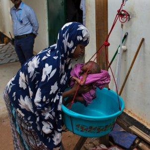 EuropaPress 3151230 nino desnutricion somalia