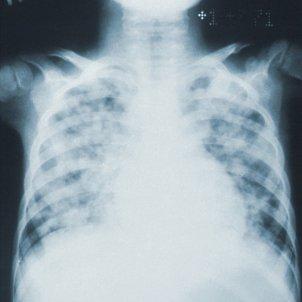 Rx Pulmones
