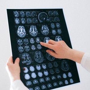 Imágenes cerebro