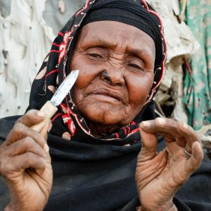 Mutilació genital
