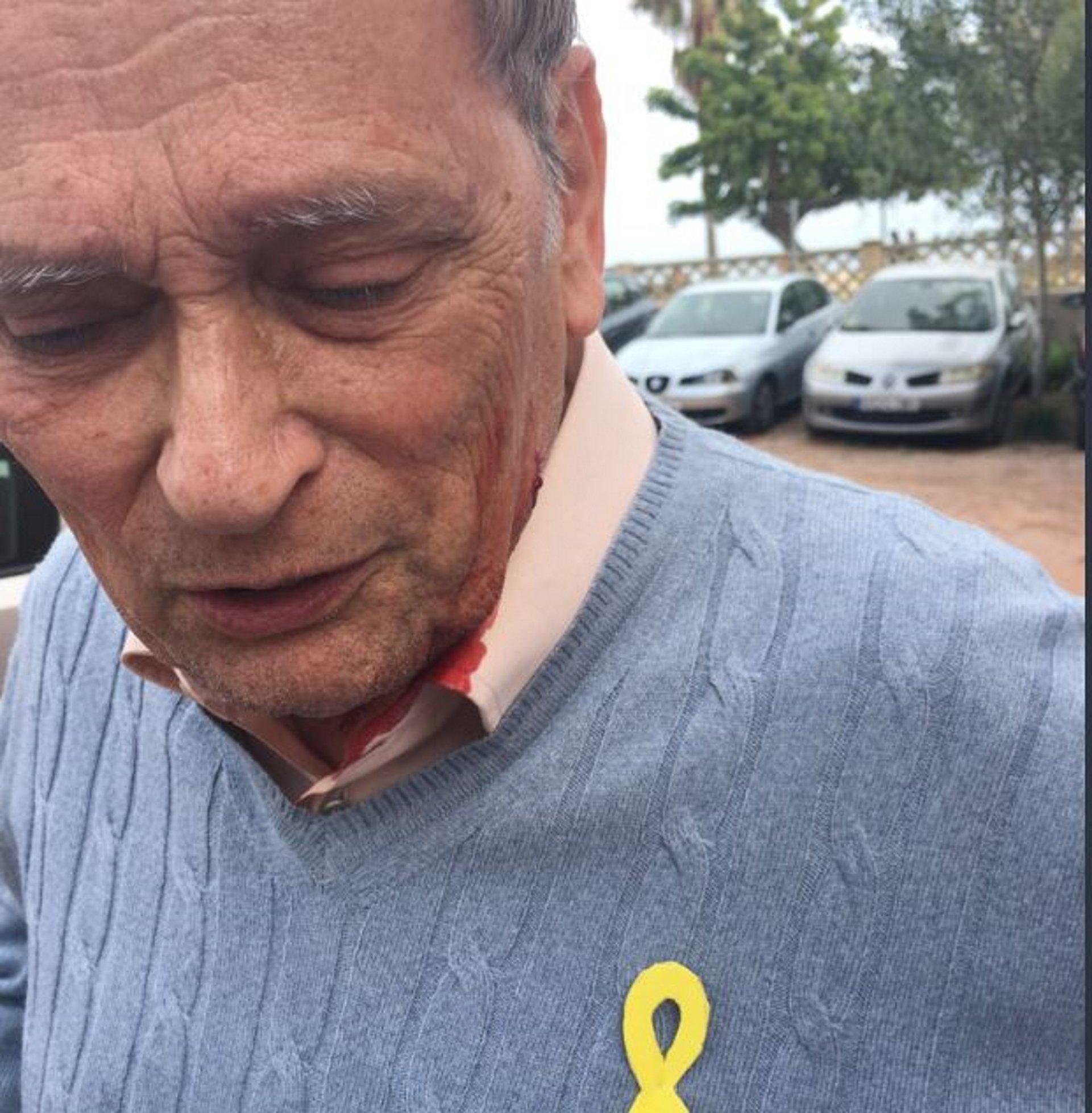 Resultado de imagen de Regidor de la CUP: Entre els agressors hi havia militants de Cs i Falange