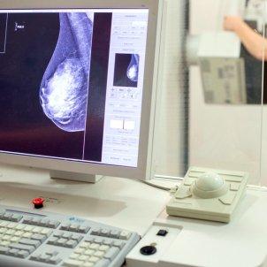 mamografia ACN