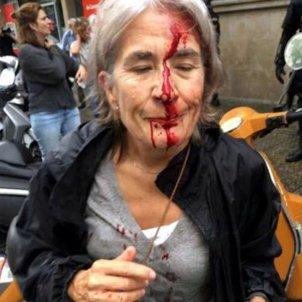 Dona ferida escola mediterrània - ACN
