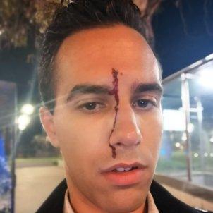 Xavier Martínez homofobia acn