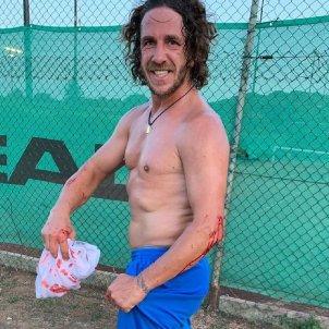 Carles Puyol sang @carles5puyol