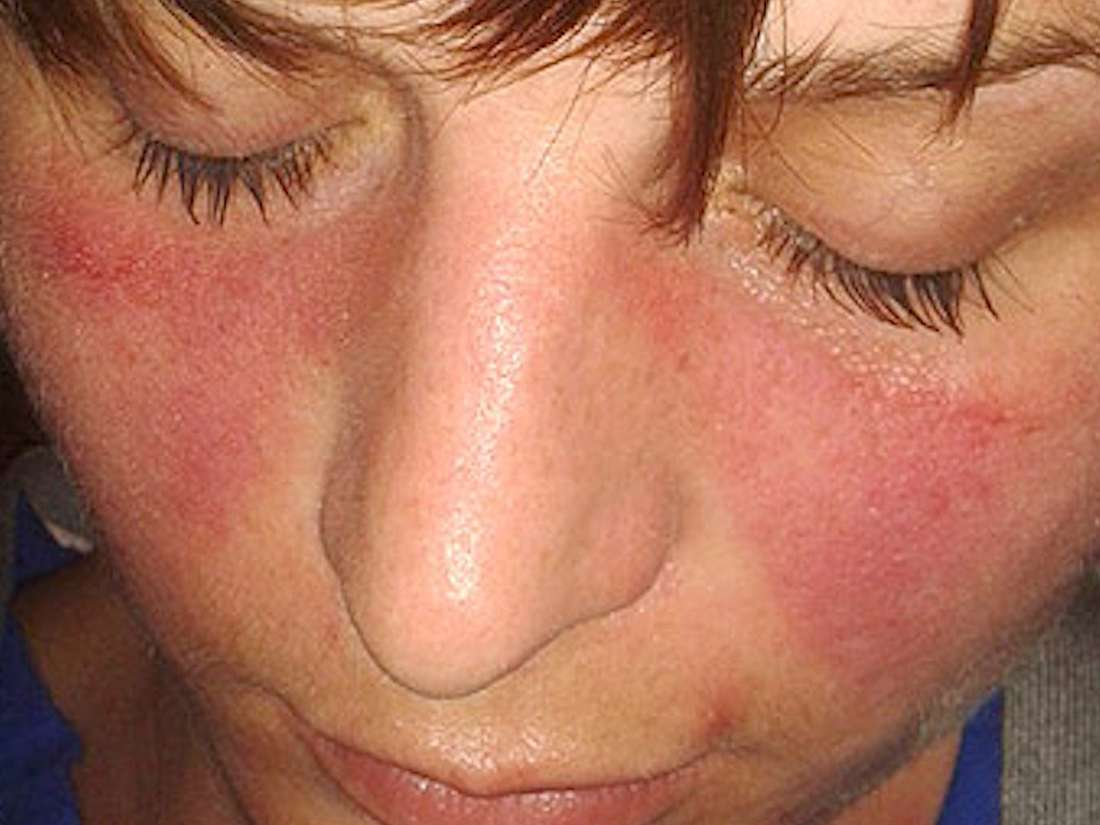 Lupus Wikipedia