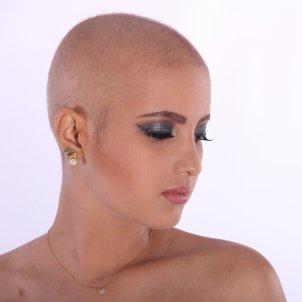 Alopecia Pixabay