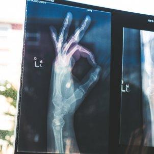 Radiografía Unsplash